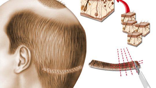 Chirurgie esthétique de la calvitie et greffe de cheveux