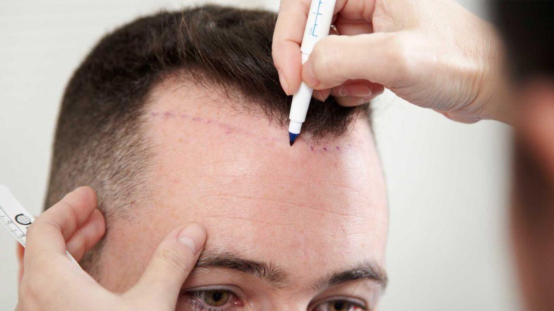 Greffe de cheveux par technique FUE