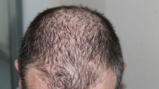 Greffe de cheveux pour la calvitie
