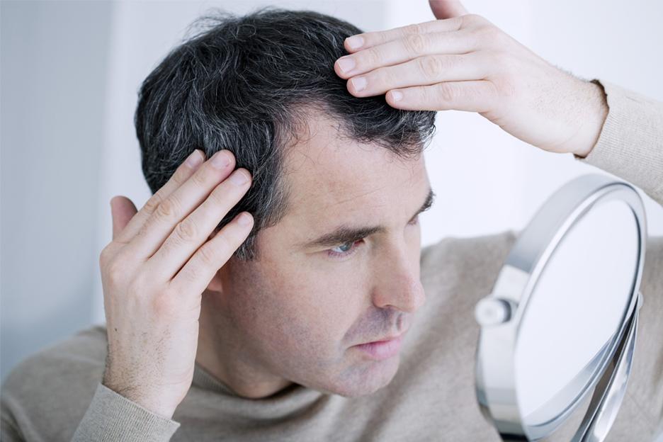 Calvitie et perte de cheveux – Traitement de prévention contre l'alopécie